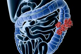 cas_clinique, D�pistage du cancer colorectal dans la parent�le